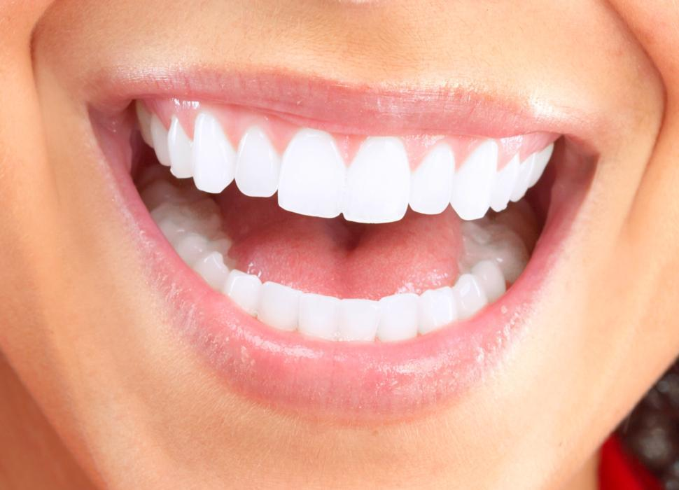 Teeth Whitening Indianapolis