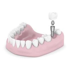 Dental Implants Cumberland