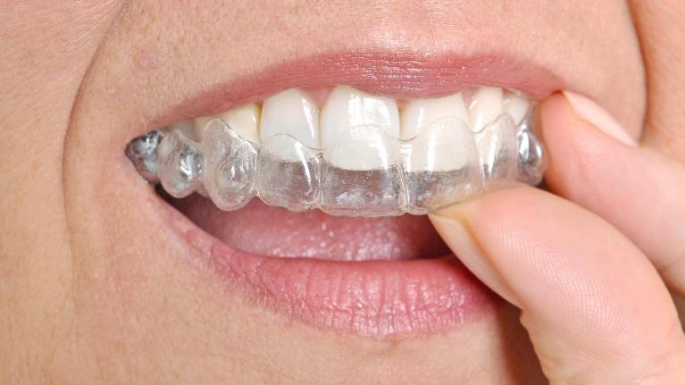Older Woman Using Clear Aligners | ClearCorrect in Indianapolis