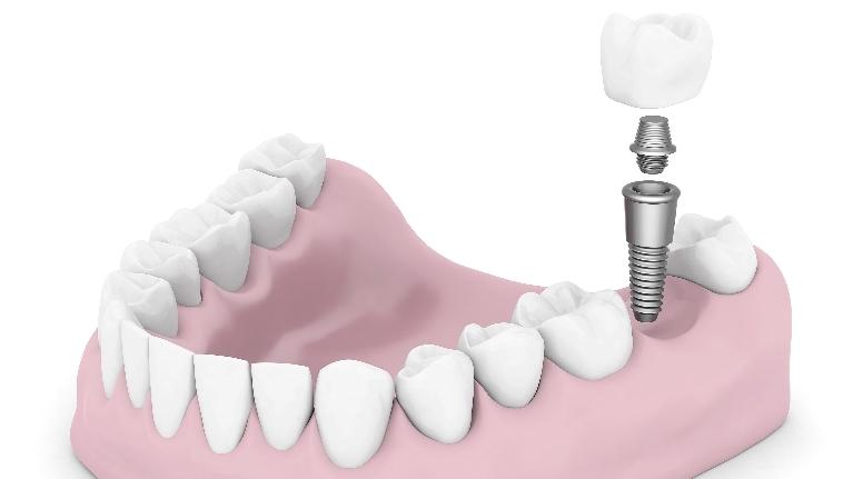 Modern Tooth Replacement, Dental Implant Diagram | Dental implants in Indianapolis IN