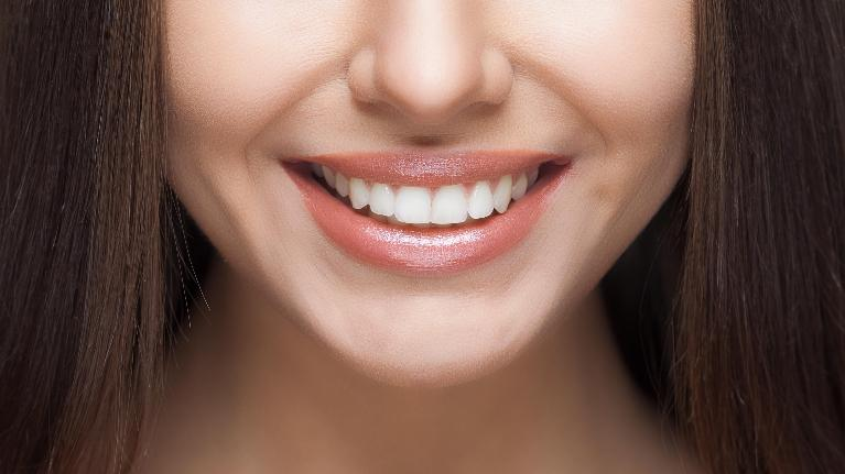 Up Close Shot of a Woman | Veneers in Indianapolis
