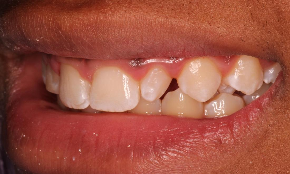 Fixing Gaps in Teeth in Indianapolis