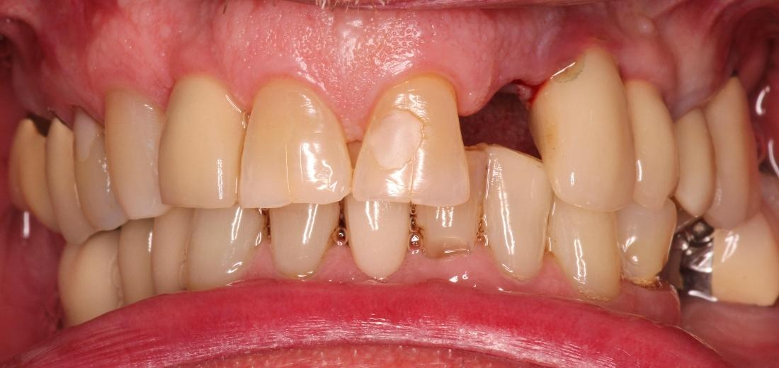 Tooth Replacement and Dental Crown in Cumberland IN