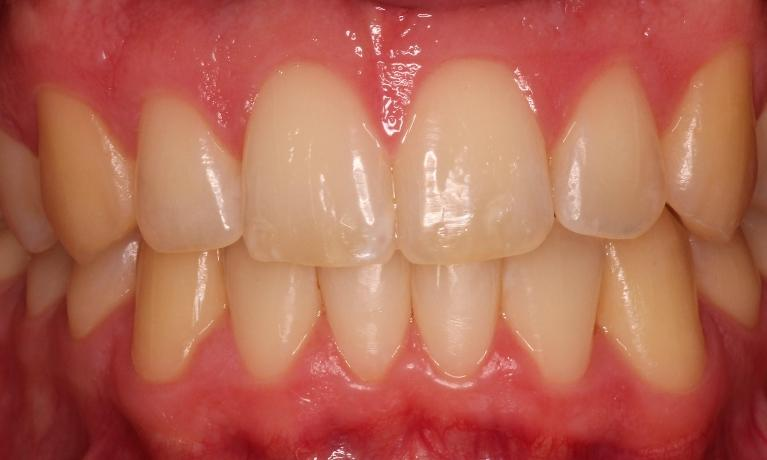 Clear-Braces-After-Image