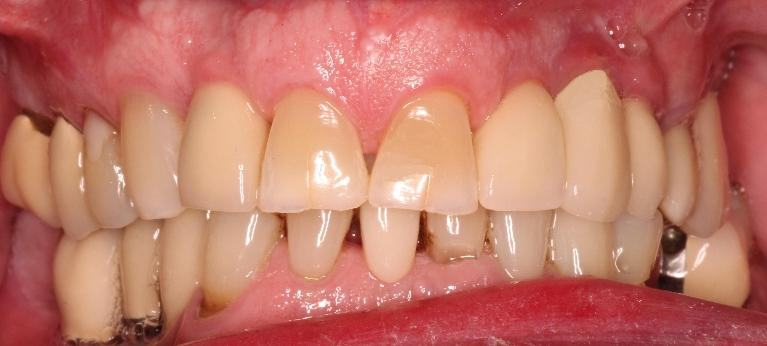 Single-Implant-and-Crown-Lateral-Incisor-After-Image