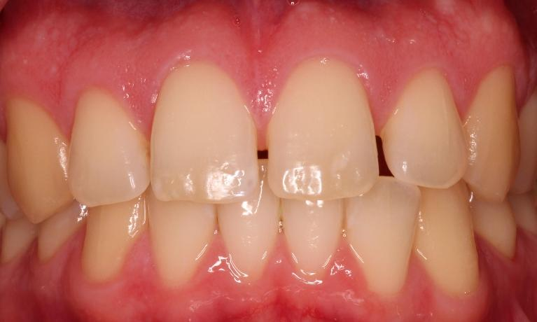Clear-Braces-Before-Image