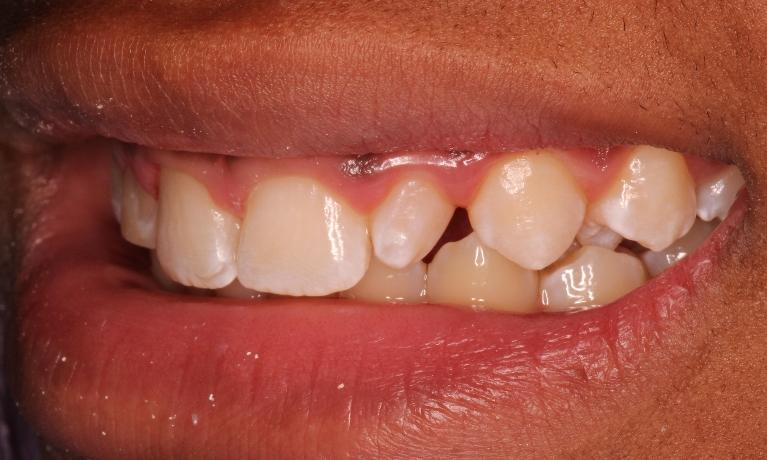 Cosmetic-Bonding-Before-Image